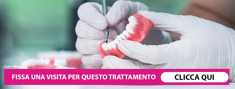 Protesi dentale: 7 cose che devi sapere.