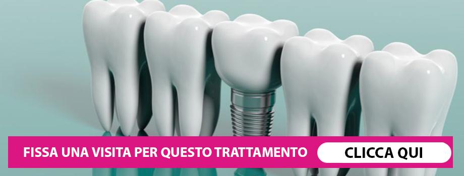 Mettere un impianto dentale provoca dolore?